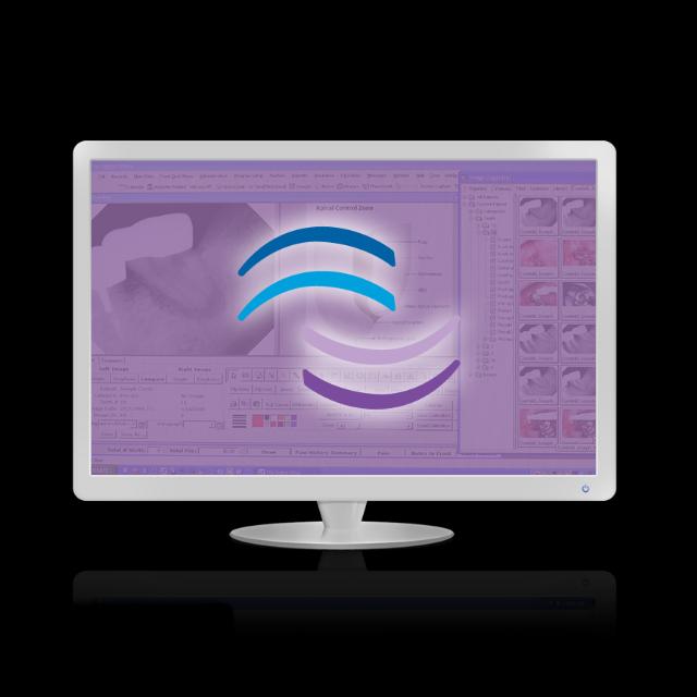 TDO® Software